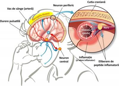 durere în articulația temporală