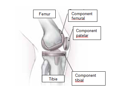Monturi la Picioare: Tratament - Cand e nevoie de operatie? - ProEstetica