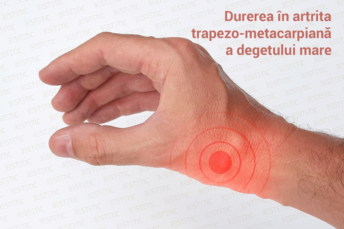 mâinile se agită cu artrită
