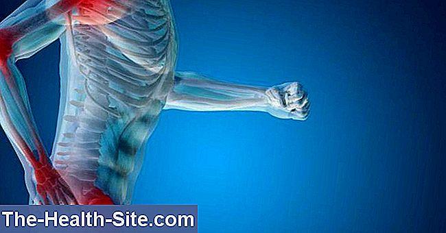 Artrita reactivă – ce este, simptome, tratament