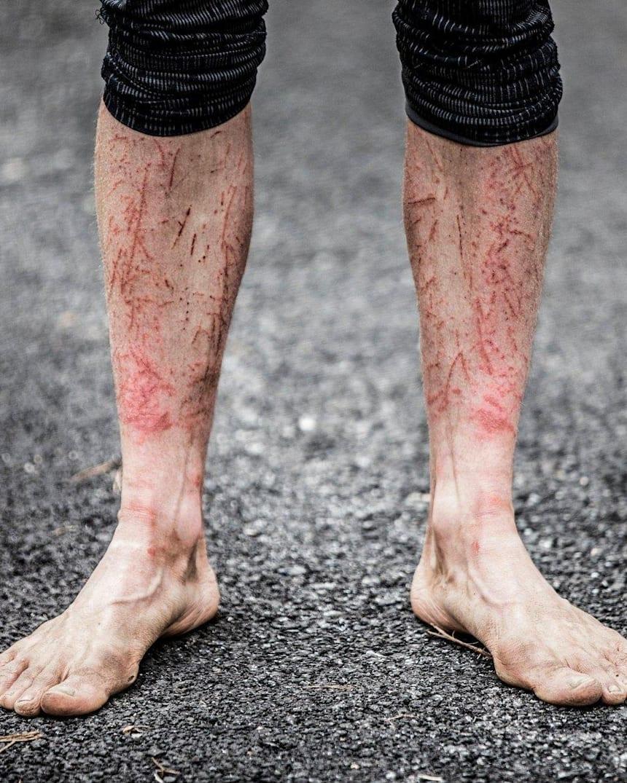 pentru a nu răni articulațiile atunci când alergi