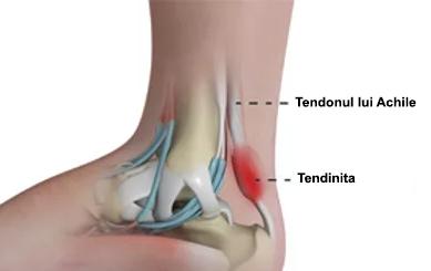 inflamația articulației și tendoanelor