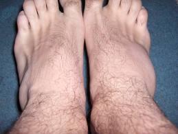 Entorsa Genunchi - Ortopedie ArcaLife - Cum să tratezi o luxație a genunchiului