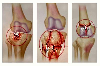 decât să te frământezi cu artroza genunchiului