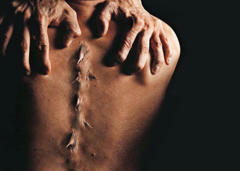 tratamentul durerilor articulare cu un flux de castor stimulanți de regenerare a cartilajelor