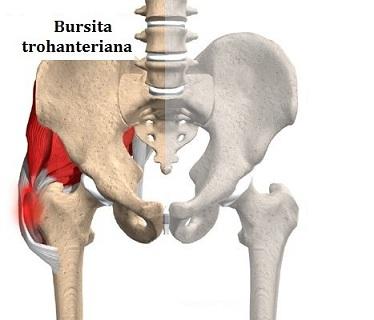 simptomele bolii durerii articulare tratamentul articulației amoniacului
