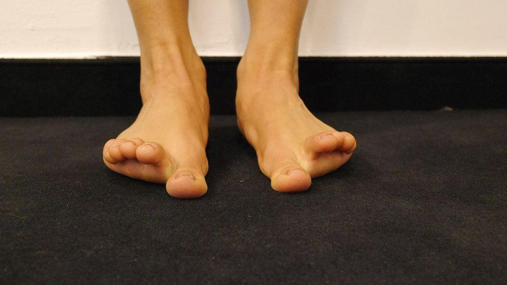 boala articulațiilor mari ale extremităților inferioare artroza deformantă a articulației genunchiului stâng