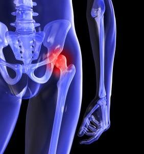 Durere În Fața Articulației Șoldului, Durere la nivelul articulației șoldului când ghemuit