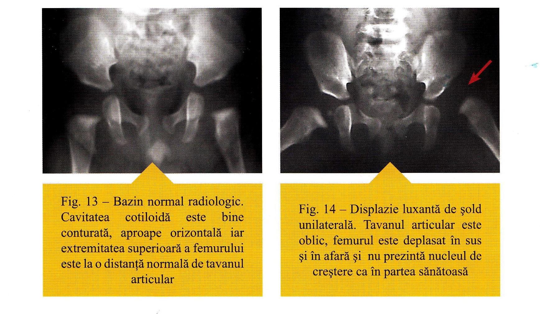 inflamația articulației cotului după o fractură de ce doare fiecare articulație