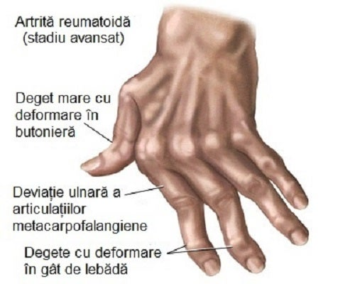 artrita gel de unguent pentru tratamentul mâinilor