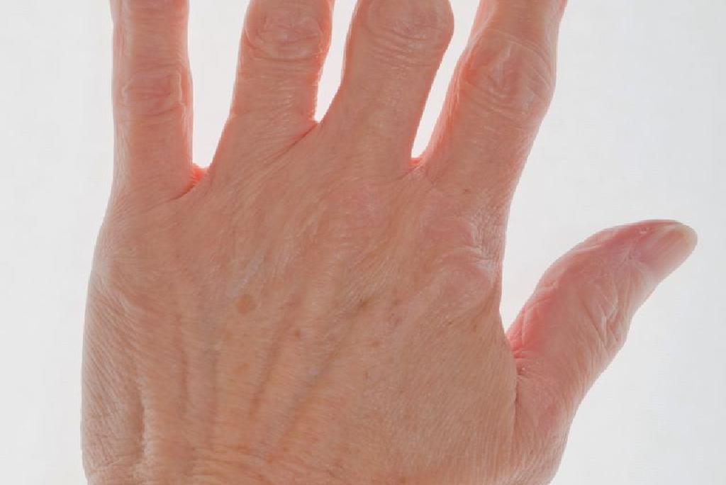affetti da artrite reumatoide - Traducere în română - exemple în italiană | Reverso Context