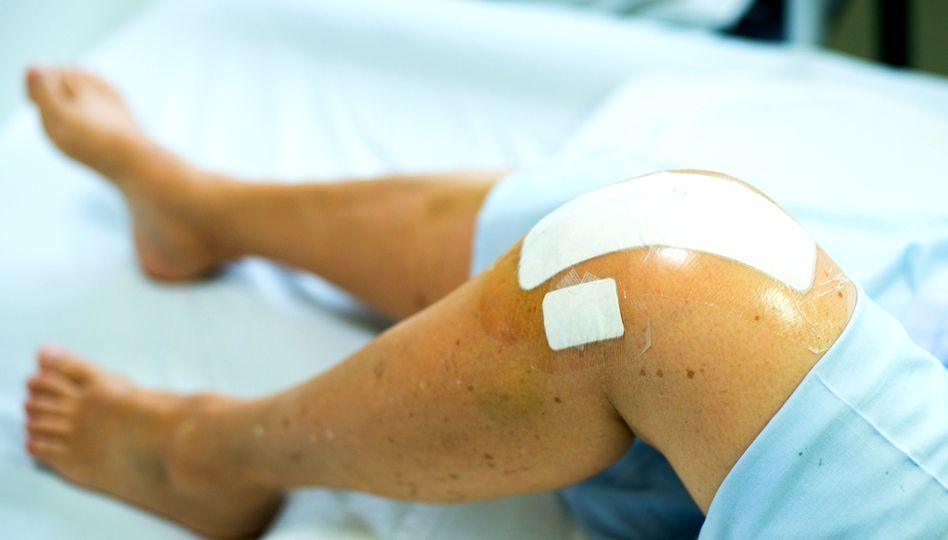 Umflăturile la genunchi: 5 remedii naturale - Doza de Sănătate