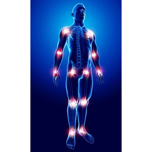 durerea articulară provoacă simptome instrucțiune de condroitină crema de glucozamină