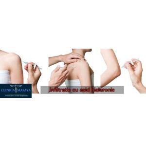 articulația brațului drept doare tratamentul artrozei primei articulații carpiene metacarpiene