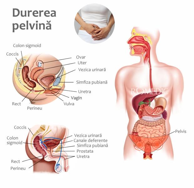 Durerea sau sensibilitatea perineală   ROmedic