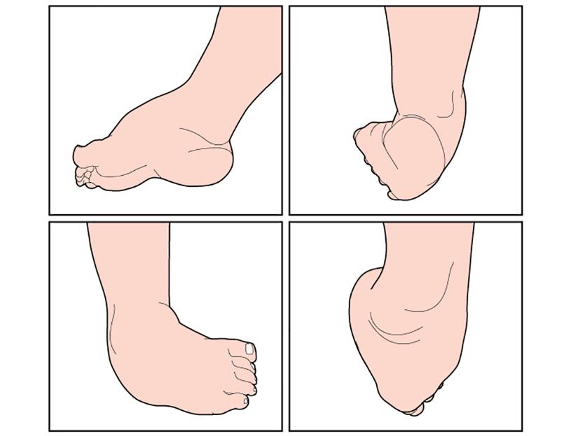 De ce dureaza articulatiile piciorului - cauze si tratament - Diagnosticare
