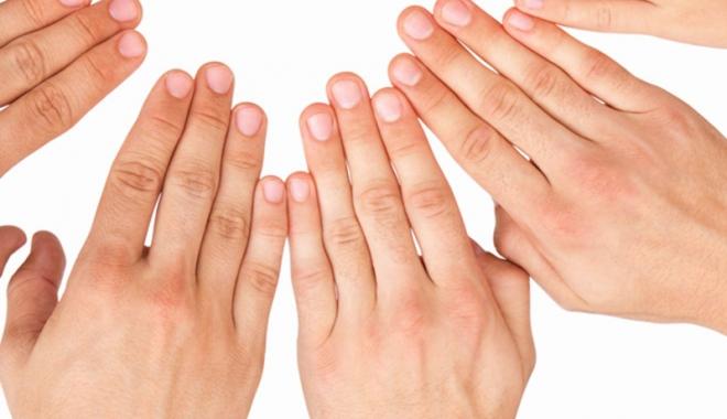 artrita reumatoidă tratată
