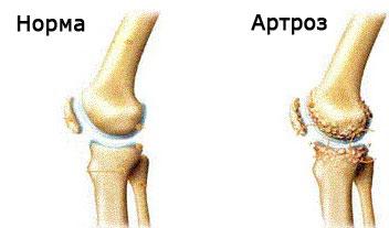 Este posibilă vindecarea artrozei articulației gleznei ceea ce este imposibil cu artrita articulațiilor