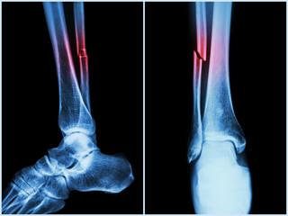 articulația mâinii drepte doare cele mai bune produse pentru repararea cartilajelor