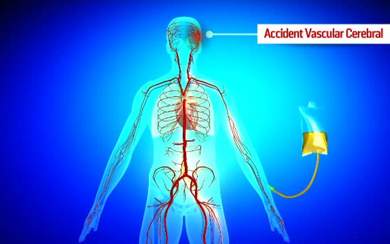 Dureri articulare cu un accident vascular cerebral, Fizioterapia după un accident vascular cerebral