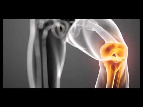 tratamentul artrozei pentru specialiști
