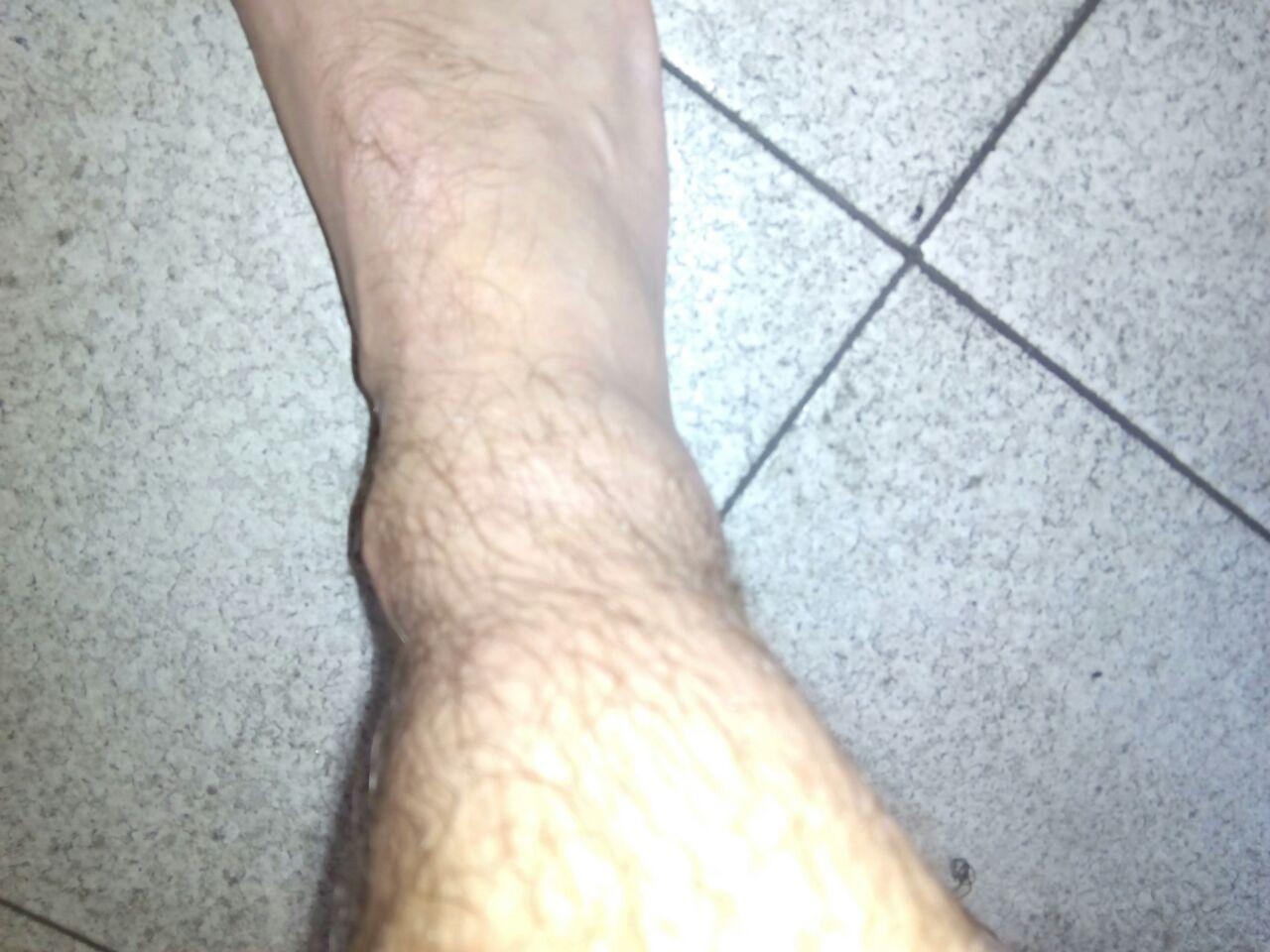 Așezat durerea picioarelor când sa