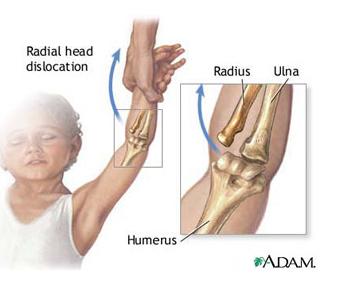 antebrațele mâinilor și coatelor doare