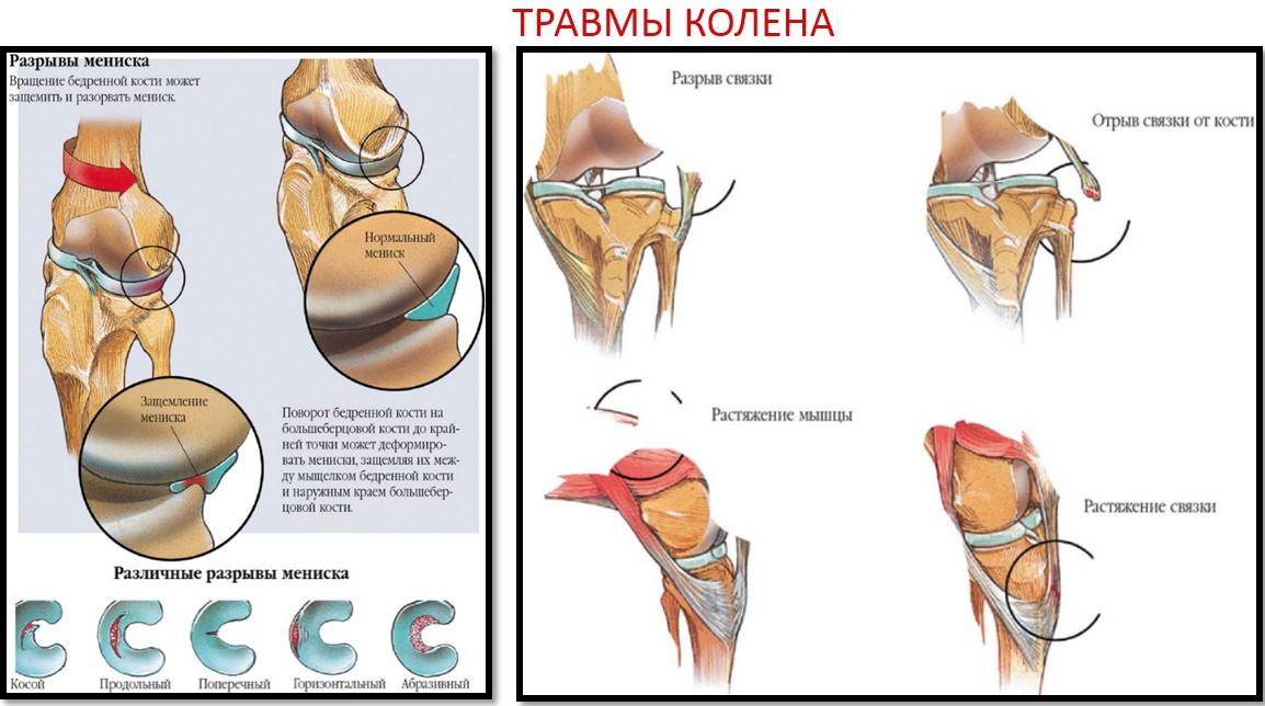 articulația cotului doare după apăsarea bancului unguent pentru tratamentul osteocondrozei lombare