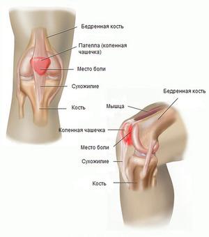amelioreaza artroza durerilor de genunchi artroza durerii severe a articulației șoldului