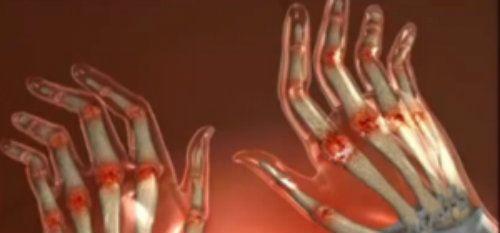 articulațiile degetelor au început să dureze tratamentul articulare grase