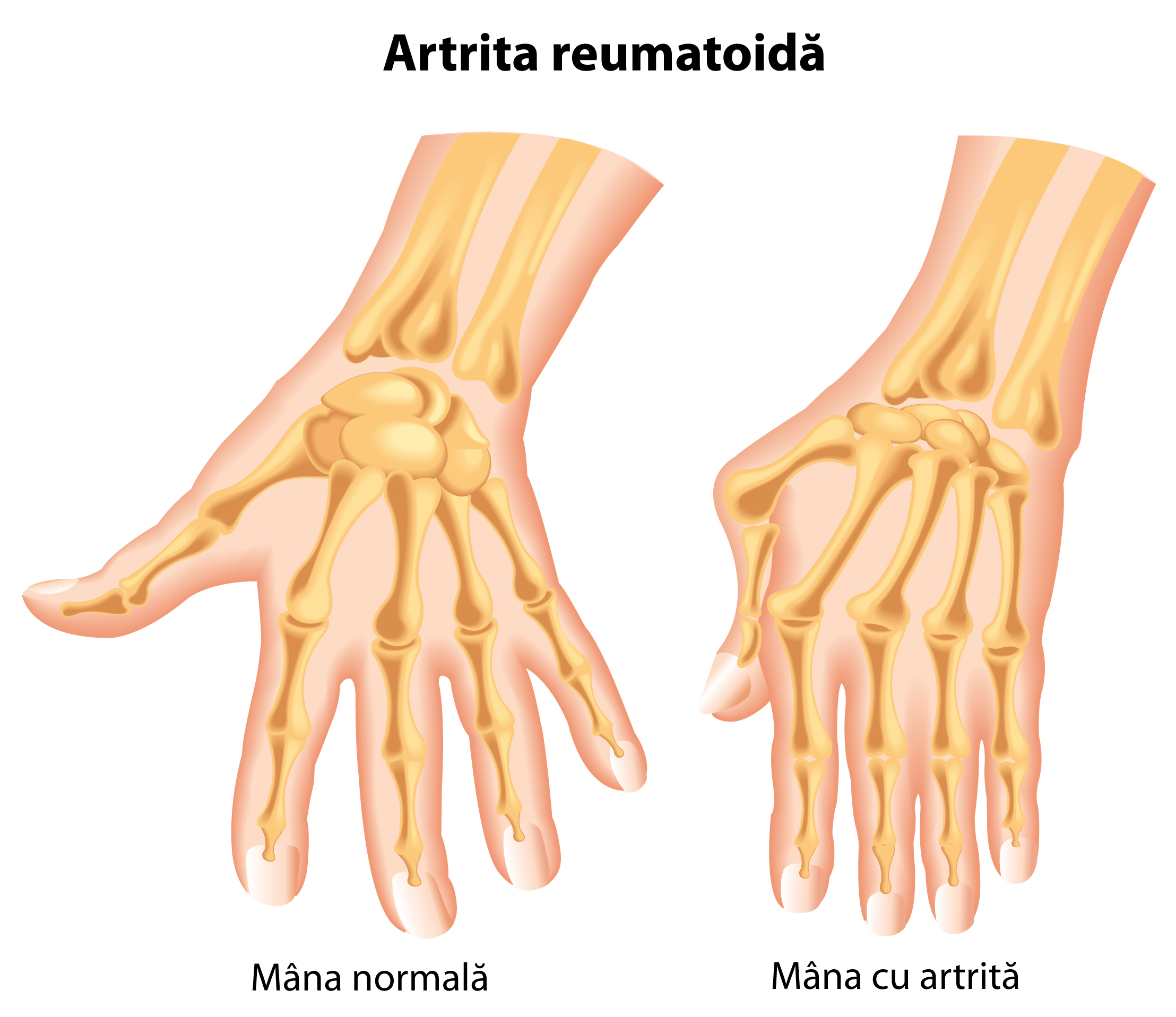 artrita acuta a mainii