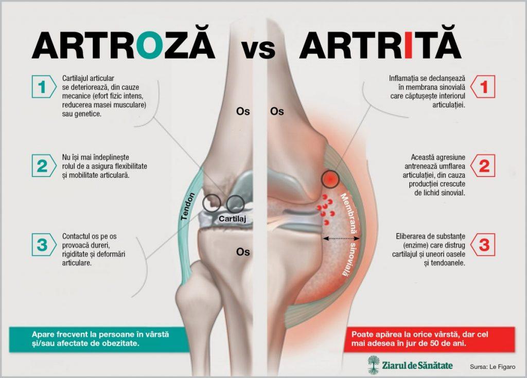 artrita articulației mâinii