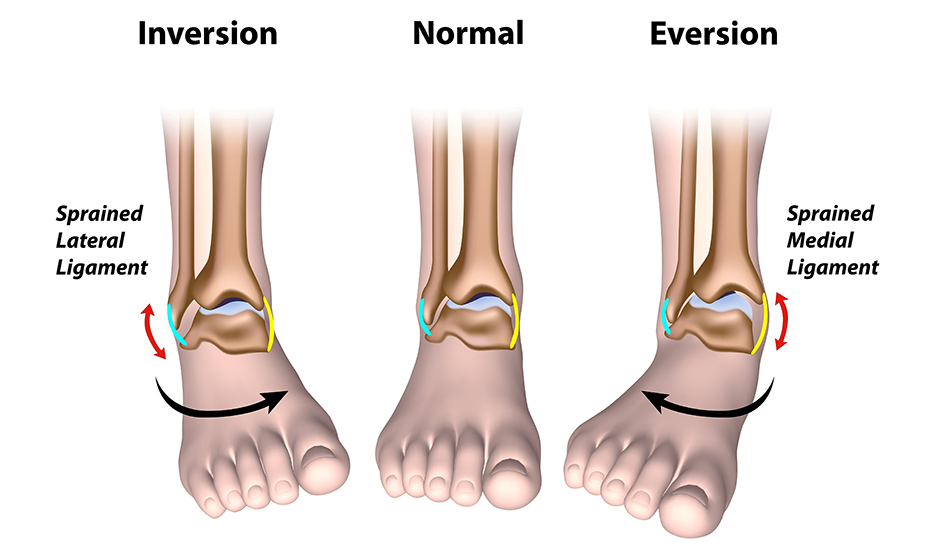 Poliartrita reumatoida - Tratamentul artritei gleznei de gradul 3