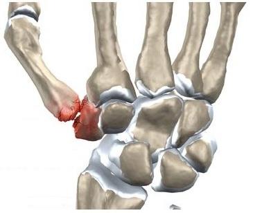 artrita fractura de deget de la picior complicații ale leziunilor articulare