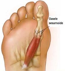 artrita fractura de deget de la picior Tratamentul articular Apsheronsk