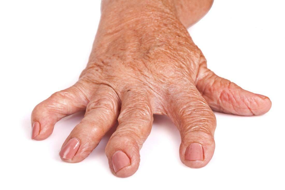 artrita reumatoidă a mâinilor primele simptome