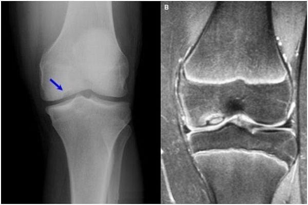 Artroza deformantă a tabloului radiologic al genunchiului. Artroza, artrozele