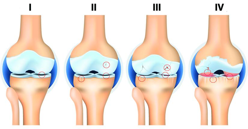 Artroza în articulațiile transversale