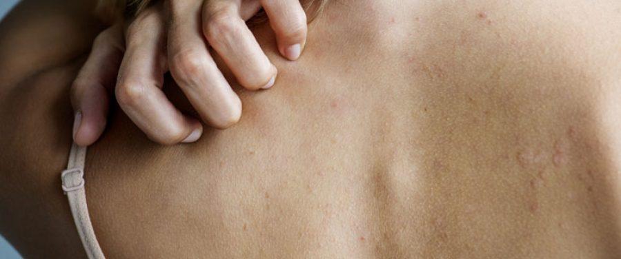 condroprotectoare pentru artroza articulației gleznei