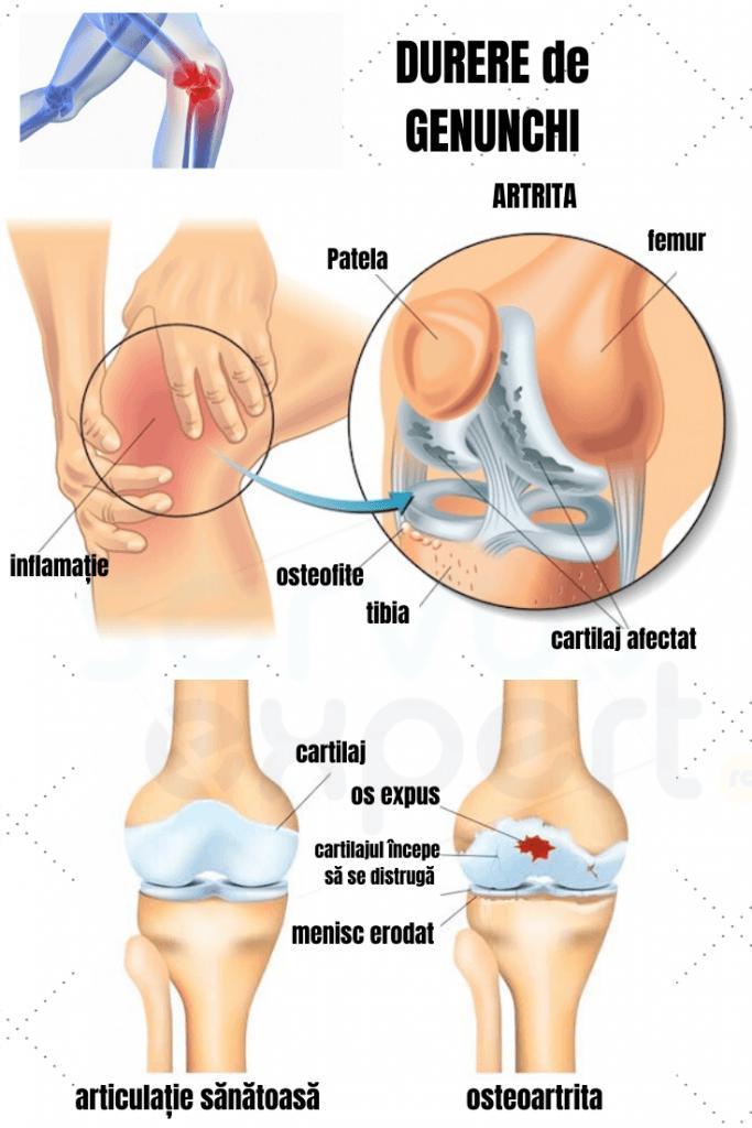 durere sub genunchi la interior Vitrum Condroitin Glucosamina