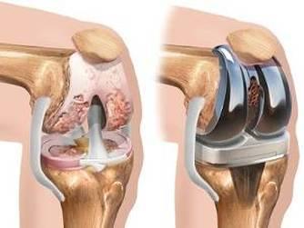 bazin și artroză a genunchiului clasificarea bolilor ereditare ale țesutului conjunctiv