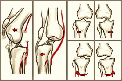 cum să consolidezi mușchii articulației genunchiului cu artroză