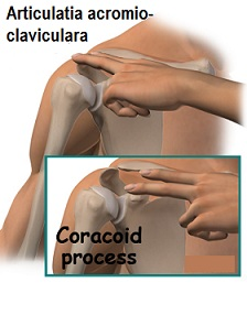 Artroza articulației acromio-claviculară | Arcadia Spitale si Centre Medicale