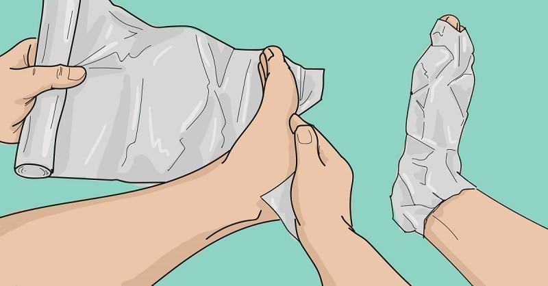 Articulația genunchiului zboară cum să tratezi - Guta la articulatiile degetelor de la mana