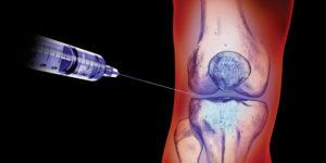 ameliorarea artrozei de durerile articulare de ce rănesc articulațiile de pe coate