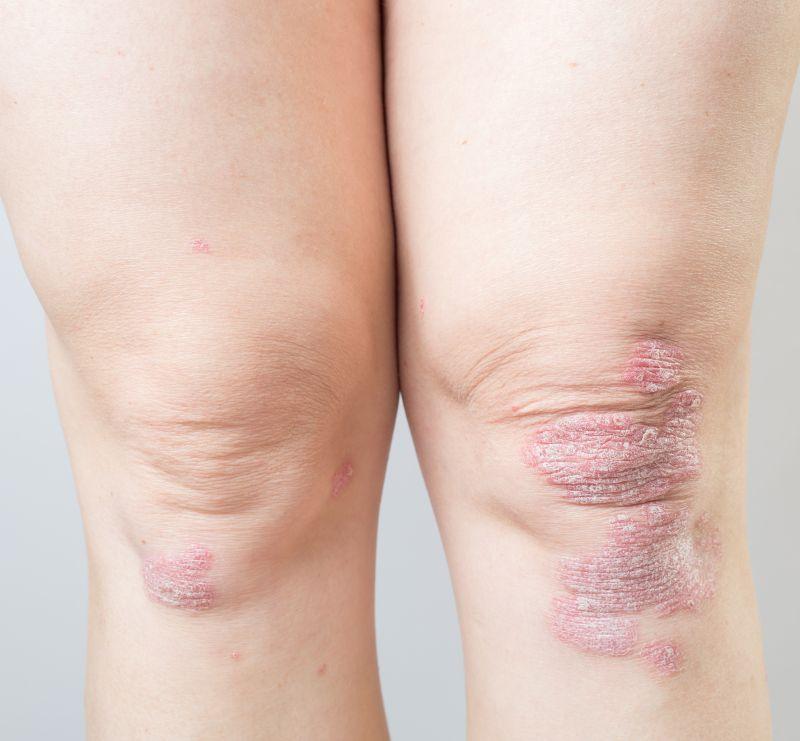 bolile pielii cotului