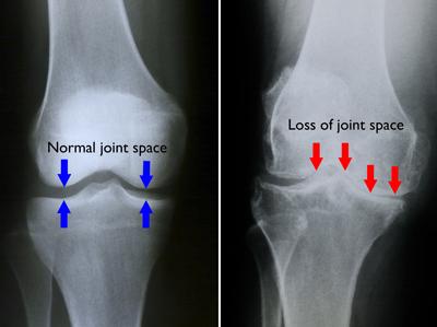 osteofite dureri articulare artroza deformantă a genunchiului tratament de 4 grade