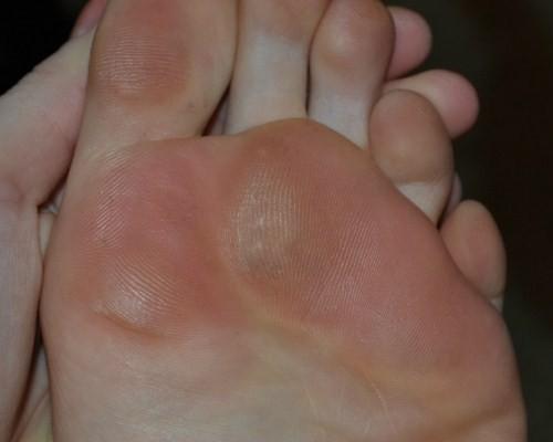 porumb pe articulația inflamației degetelor de la picioare tratamentul forum al artrozei deformante a genunchiului