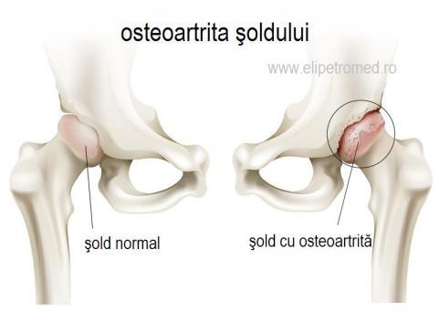 artrita artrita a soldului