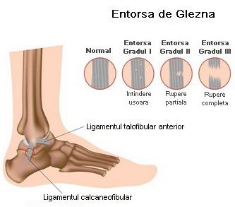 unguente pentru durere în articulația gleznei cele mai bune preparate pentru articulații și oase